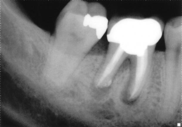 How to Identify Improper Root Canal Healing