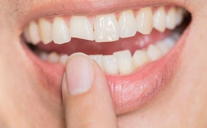 You May Need a Dental Crown for That Cracked Tooth